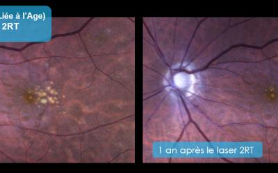 Traiter la MLA (Maculopathie Liée à l'Age) de la rétine avec la chirurgie oculaire laser 2RT