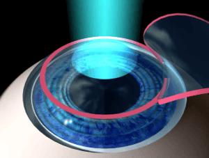 LASIK, traitement laser de surface